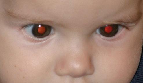 ojos rojos original